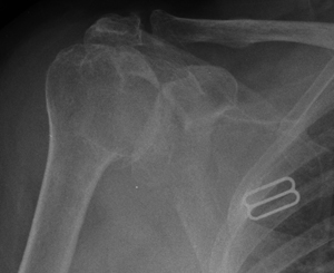 cementless short-stem humerus