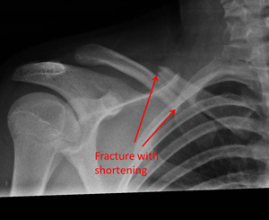 fracture of the collar bone