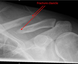 displaced fracture in the middle third of the clavicle
