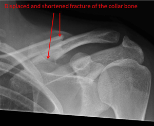 shortened (overlapping ends) fracture of the collar bone