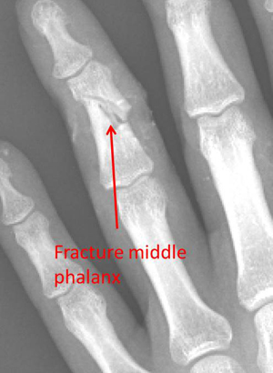 open fracture of the middle phalanx preop